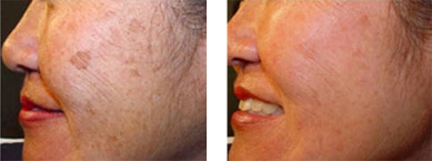 Before and After Intense Pulsed Light Treatment