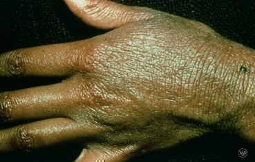 atopic-dermatitis-symptoms_hand.jpg