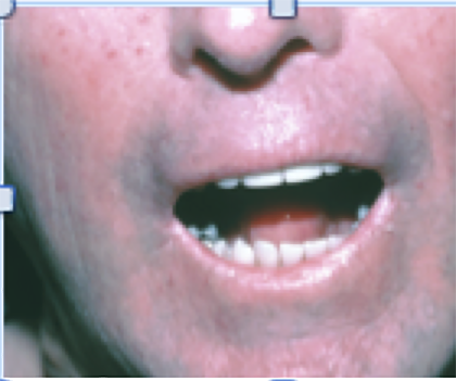 laser_treatments_mouth.png